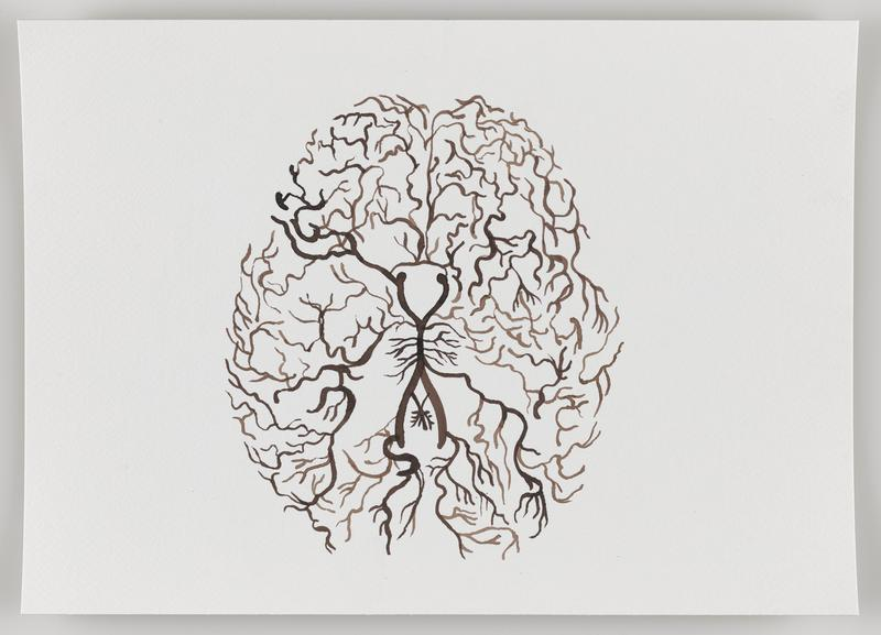 brown branching lines in the form of a human brain